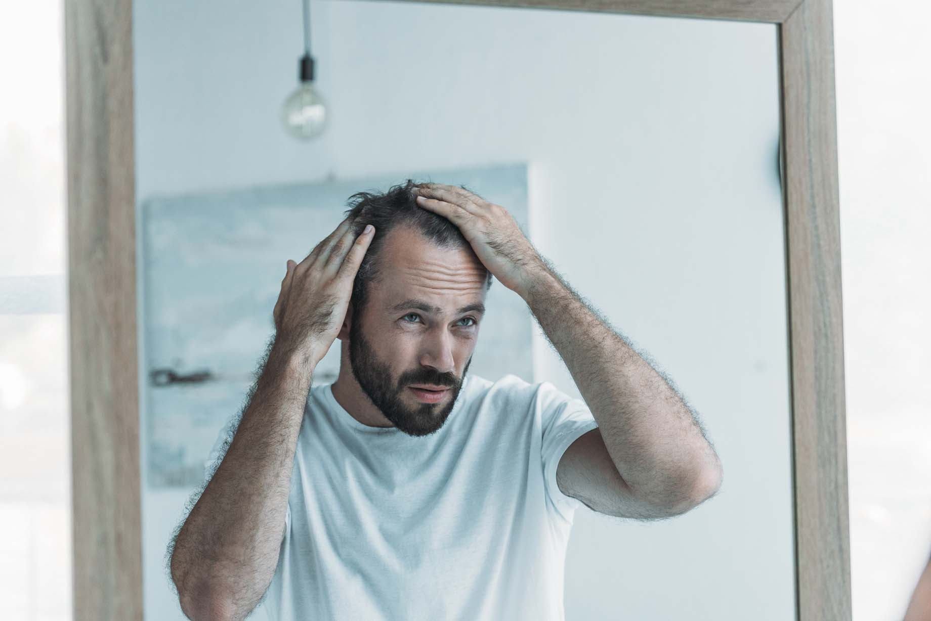 The Impacts of Hair Loss